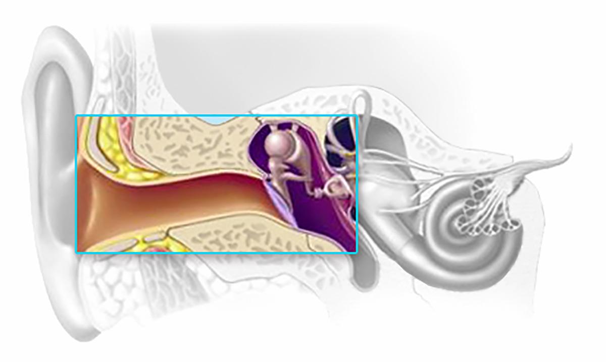 Te tudod, milyen típusú hallássérülésed van?